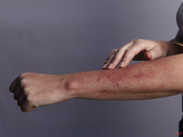 ظهور حبوب في الجسم كقرص الناموس