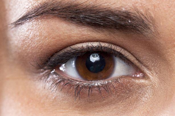 ازالة الهالات السوداء تحت العين باسرع وقت